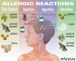 Allergy Reactions